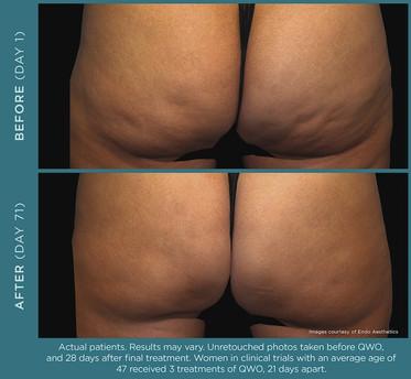 QWO Cellulite Treatment _ A New Dawn Wellness Center 2.jpg