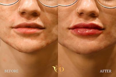 Lip Filler in Scottsdale (Before & After