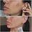 Thumbnail: Epoch® Blemish Treatment