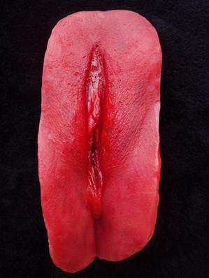 Clitoridectomía