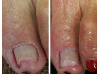 TIRED OF DAMAGED, TRAUMATIZED, MISSING OR SIMPLY UNSIGHTLY TOENAILS?