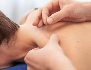 What is Dry Needling