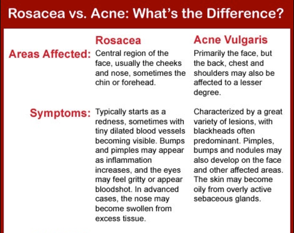 Treat acne and Rosacea naturally, with Chinese Medicine