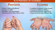 Heal Psoriasis, Eczema, Acne, and Rosacea with Chinese Medicine!