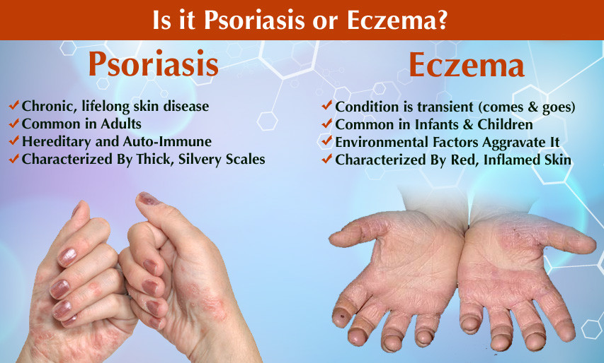 Treatment for psoriasis, eczema, acne, rosacea byron bay