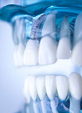 Dentsts dental prosthetic teeth, gums, r