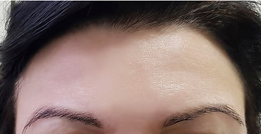 forehead women wrinkles before and after