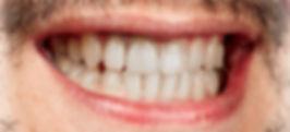 Whitening - whitening teeth treatment, o