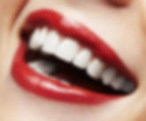 Woman smile. Teeth whitening. Dental car