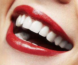 Woman smile. Teeth whitening. Dental car
