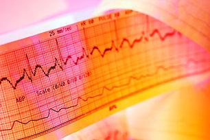 Canva - Electrocardiogram graph - ECG.jp