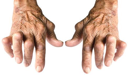 Canva - Rheumatoid Arthritis Isolated on