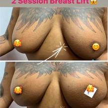 vacuum breast.jpeg