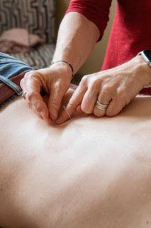 Comm Acupuncture Nervous System Reset