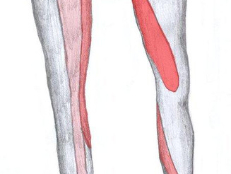 What is sciatica, and how can I get rid of it?
