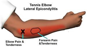 Elbow and wrist pain in rowers - Why?