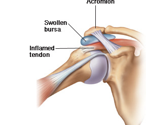 What is shoulder bursitis?