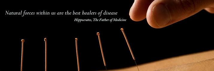 acupuncture-climbers-1000x400_edited.jpg