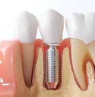 tratamento-de-canal-ou-implante-770x514.