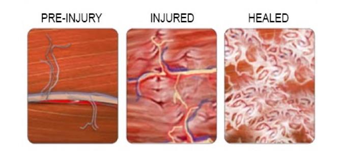 Understanding scar tissue