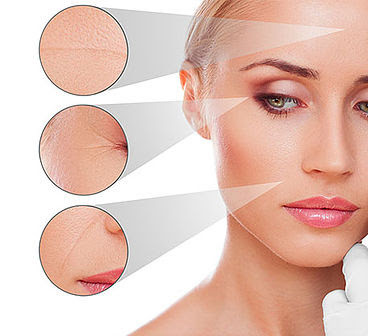anti-wrinkle treatment botox west auckland
