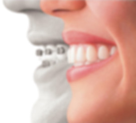 Invisible Braces Invisalign - St George Dental