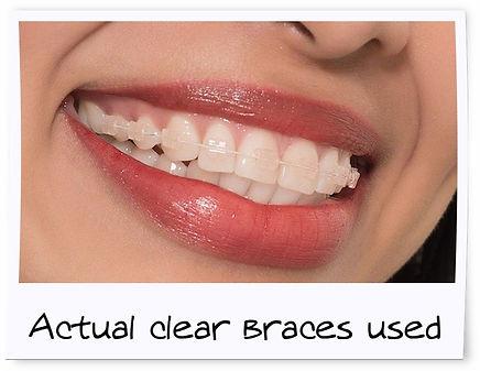 Clear Braces - College Street Dental