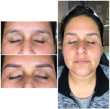Combo Brows, healed at 3 months.