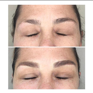 Brow shape correction and more added definition with Microblading and shading.