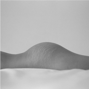 Model laying down with stretch marks