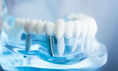 İmplant Tedavisi Karaca Diş