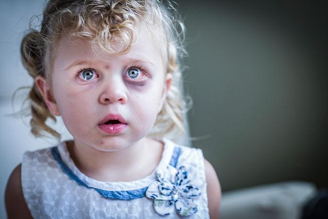 Sad Little Abused Girl.jpg