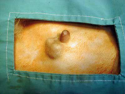 Tumores mamarios