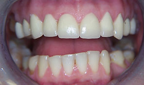 Diamond Dental Studios Exeter After Dental Veneers