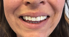Diamond Dental Studios Exeter after cosmetic dentistry