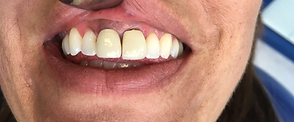 Diamond Dental Studios Exeter Before Cosmetic Dentistry