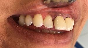 DiamBefore Dental Veneersnd Dental Studios Exeter
