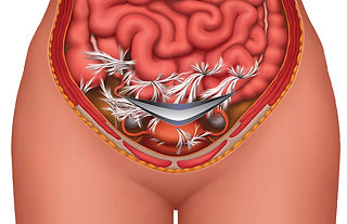 c-section-adhesions.jpg
