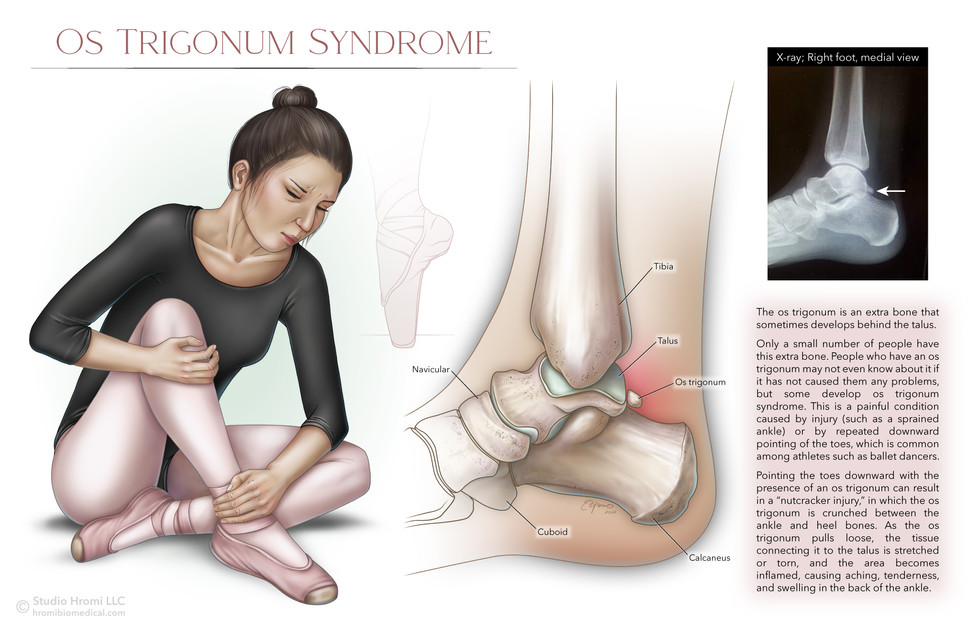 Os Trigonum Syndrome