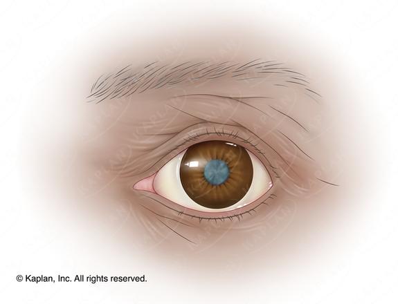 Human Eye with Cataract