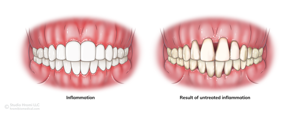 Result of Untreated Gingival Inflammation