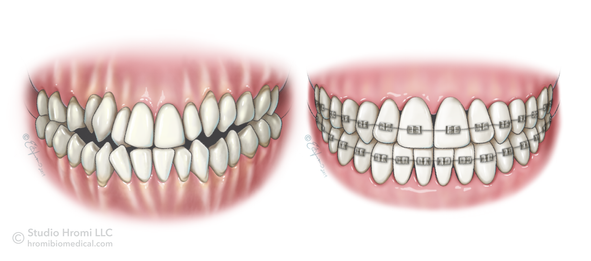 Before/After Surgically Facilitated Orthodontic Therapy