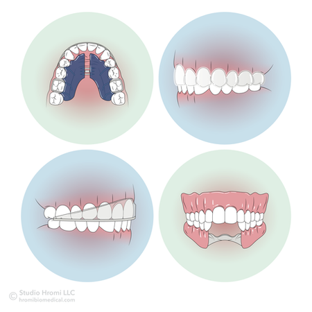Removable Oral Appliances