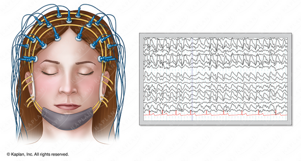Person Undergoing EEG While Asleep