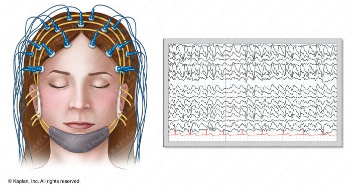 Person Undergoing EEG While Asleep