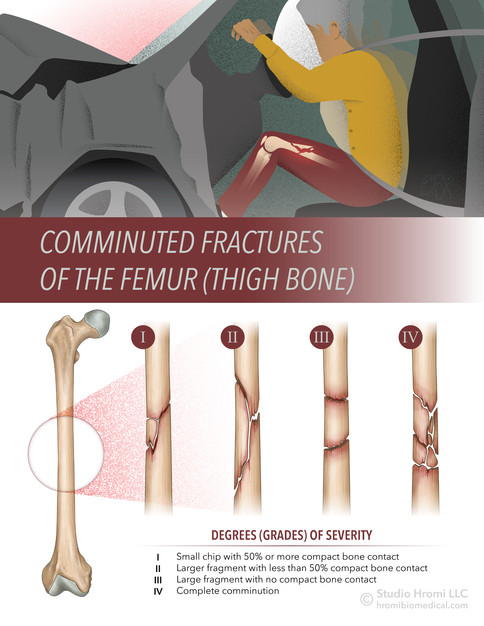 Comminuted Fractures of the Femur