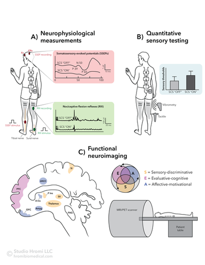 Spinal Cord Stimulation Testing and Imaging