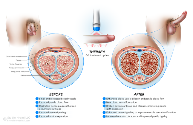 Shockwave Therapy for Erectile Dysfunction