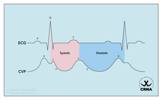 ECG & CVP Graph