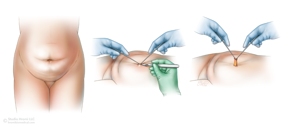 Tummy Tuck Procedure, steps 1-3